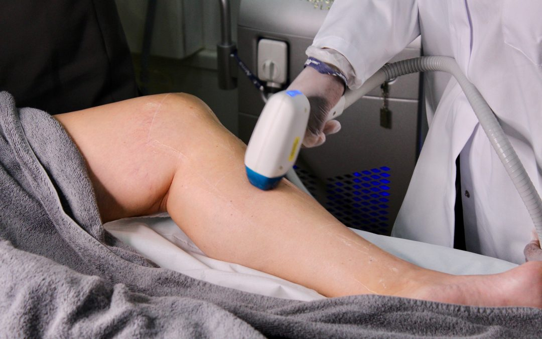 What you need to know before your first laser hair removal session