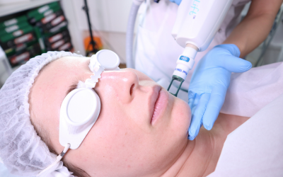 Everything you need to know about ClearLift laser treatment