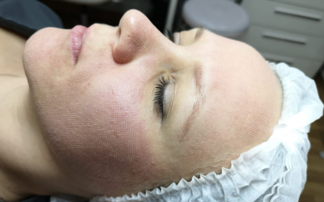 Why you should consider getting i-Pixel laser skin resurfacing treatment