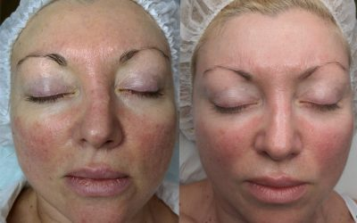 Invest in skin rejuvenation treatments at Dermacure Laser Clinic