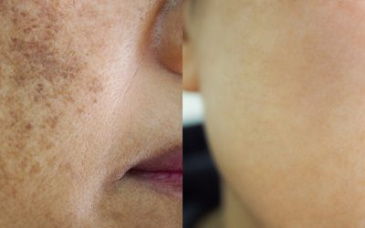 What is Skin Pigmentation and what causes it?